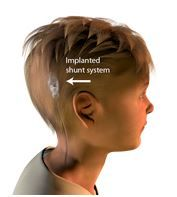 Shunting is the most common treatment for anyone with hydrocephalus (excess fluid buildup in the ventricles of the brain). Hydrocephalus shunting involves the implantation of two catheters and flow control valve system to drain the excess accumulation of cerebrospinal fluid (CSF) from the brain's ventricles (or the lumbar subarachnoid space) to another part of the body where it can be absorbed... Another good publication for those learning about Hydrocephalus from square one!