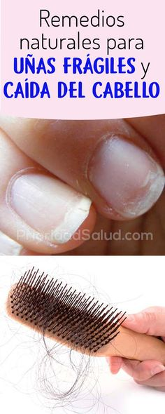 HairLoss – Hair Care Tips and Tricks Stop Hair Loss, Prevent Hair Loss, Diy Beauty, Beauty Hacks, Cabello Hair, Extreme Hair, Hair Care Tips, About Hair, Nail Art Designs