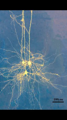 Real picture of neurons.