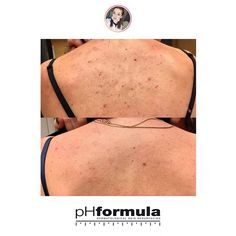 Excellent skin resurfacing results from our pHformula skin specialists in Russia. Thank you for sharing these great results # Skin Resurfacing, Skin Specialist, Russia, Life