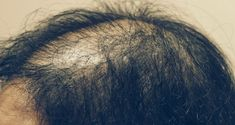 Scientists have developed a baldness treatment that helps grow new follicles - Info