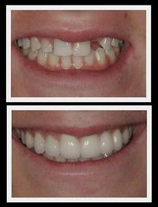 From home dental retainers dentures from home dental tooth temporary tooth repair or replace kit diy makes 25 30 teeth no adhesive needed solutioingenieria Image collections