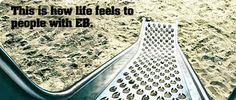 Please take the time to learn about Epidermolysis Bullosa (EB)