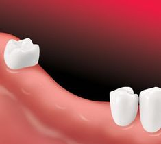 Dental Implants Aspen Dental Dental Implants Teeth Implants Tooth Implant Cost