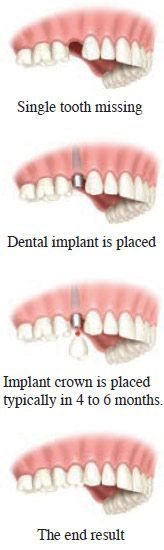 If you are missing a single tooth due to disease or trauma, it can be easily replaced with a single dental implant. To replace a single tooth, a self-supporting dental implant is placed at the site of the missing tooth consisting of a titanium base, an abutment post and a crown or replacement tooth that will look and feel like a natural tooth.
