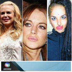 Preenchimento labial cai no gosto das mulheres. Veja as famosas que aderiram à técnica! http://r7.com/VLNS #DomingoEspetacular