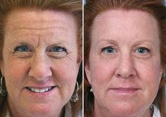 Reasons Why Practicing Face Aerobics Routines Suit The Need For Manual Natural Facelifts