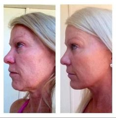 I mean the proof is in the pictures!! Need I say anything else! Contact me Rachelladd.nerium.com
