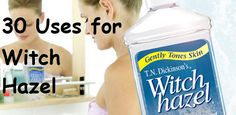 30 Uses for Witch Hazel