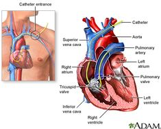 The Critical Care Nurse: Why use a Swan-Ganz Catheter? Heart Catheterization, Cardiac Catheterization, Cardiac Nursing, Nursing Mnemonics, Tricuspid Valve, Health Chart, Critical Care Nursing, Nursing Profession, Health