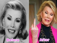 Joan Rivers on Hollywood Celebrity Plastic Surgery Disasters