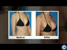 How To Increase Breast Size Naturally Up to 2 Cup Size Within 4 to 6 Weeks – You… - Ellie Green How To Get Bigger Breats, How To Get Curves, Fat Transfer, Hip Problems, Pedicure At Home, Pin On, Bigger Breast, Plastic Surgery, How To Look Better