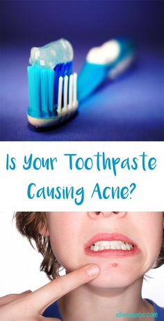 Is Your Toothpaste Causing Acne? Find Out What Ingredients to Avoid in this Comprehensive Guide.