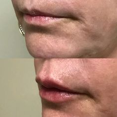 Plastic facial surgery foothills and dermatology
