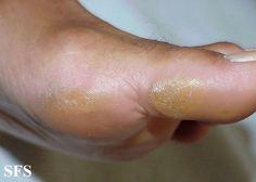 Cómo quitar callos o durezas de los pies | Cuidar de tu belleza es facilisimo.com