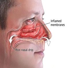 HERBAL REMEDIES FOR NASAL CONGESTION