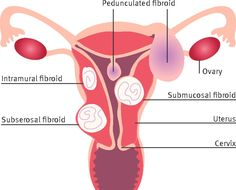 Locations of uterine fibroids. Adapted from Mayo Foundation for medical education. Read this review about the diagnosis and management of fibroids http://www.bmj.com/content/351/bmj.h4887