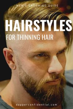 Whether you're noticing less hair around the crown or a receding hairline, every guy asks himself this question at some point in his life. Read the article for how you can work well with what you've got. Mens Haircuts Receding Hairline, Receding Hairline Styles, Haircuts For Balding Men, Thin Hair Haircuts, Balding Hairstyles, Short Haircuts, Bad Hairline, Crown Hairstyles, Tatoo