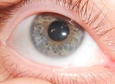 Is this Heterochromia? Medical case