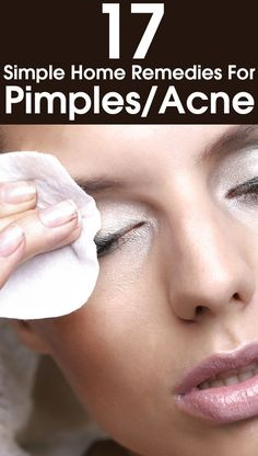 How to get rid of pimples (acne) overnight fast skin care be Home Remedies For Pimples, Psoriasis Remedies, Skin Care Remedies, Acne Remedies, Natural Remedies, Pimples On Chin, Pimples On Forehead, Pimples Overnight, How To Get Rid Of Pimples