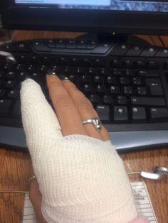 Así anda Buru, se lastimó un dedo!!
