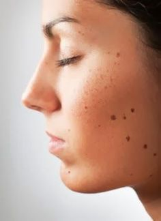 How to Get Rid Of Skin #Moles Fast [ Beauty Tips]