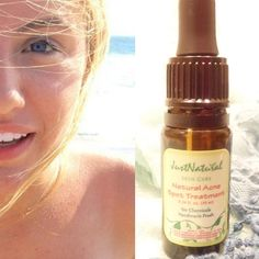 """""""Natural Acne Spot Treatment"""" – Natural-Organic Acne Products Is The Way To Go…. """"Natural Acne Spot Treatment"""" – Natural-Organic Acne Products Is The Way To Go. Natural Acne Treatment, Acne Spot Treatment, Natural Skin Care, Acne Facial, Acne Skin, Manuka Essential Oil, Just Natural Products, Oily Skin Makeup, Acne Help"""