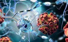Multiple sclerosis: New stem cell transplantation may 'freeze' disease progression