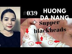 Blackheads On Face, Pimples, Epidermoid Cyst, News Channels, Acne Treatment, Youtube, The Creator, Skin Care, Ideas