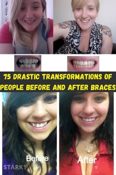 People have different reasons for getting braces. Some get them to correct overbites and underbites. Others get braces to correct jaw position and other disorders of the jaw joints. There are also people who get braces to improve their orofacial appearance. Getting braces can feel uncomfortable. As the interconnecting wires of the braces are tightened, a mild pressure gets applied on the bands or brackets to shift the jaws or teeth into the correct position. However, even though the process…