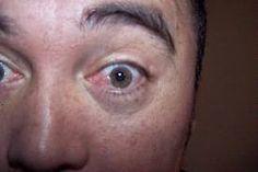 Jangan Anggap Remeh Mata Merah!!     Widhi Ap   HYPNOTIMIzer: Pterigium. Daging Tumbuh Pada Mata
