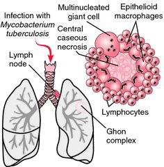 Tuberculosis-->POTT SYNDROME. The Ghon complex, typical of pulmonary tuberculosis, consists of a parenchymal focus and hilar lymph node lesions. The detaile...