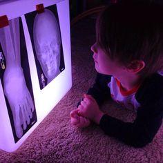 röntgenfoto's op lichtbak