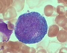 promyelocyte