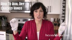 How To Naturally Heal Dry, Cracked Hands. Watch the video at http://www.beyondthepeel.net/2013/02/heal-dry-cracked-hands.html