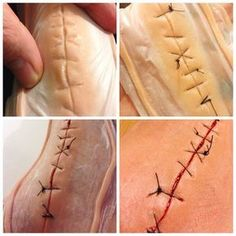 Making of the stitches