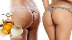 Vinagre de manzana para la celulitis.Aplica estos dos ingredientes en tus muslos y glúteos y sorprendete con los resultados.Existen un sinfín de cremas y cápsulas que prometen ayudarte a eliminar la celulitis para siempre, pero cuántas de ellas realmente hacen efecto? Además Ni hablar de su precio! La mayoría de los productos que Realmente funcionan …