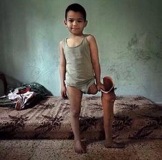 This is after Israeli's war on Gaza.. May Allah help him and cure the people living in war . Put yourself in his place..
