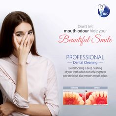 Don't let your odour hide your beautiful Just a Professional Cleaning is required. Book your appointment now! Dental Cosmetics, Smile Design, Professional Cleaning, Beautiful Smile, Dental Care, Pediatrics, Dentistry, Appointments, Clinic