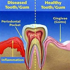 Diseased Tooth/Gum vs. Healthy Tooth/Gum. Stop gum tissue inflammation disease by getting your teeth cleaned every 3 to 6 months and brushing and flossing twice per day, or you could end up at age 65 without any teeth like 1 in 4 Americans today.  Dentaltown - Patient Education Ideas