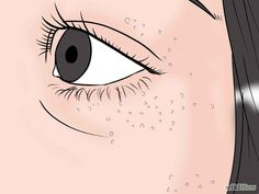 How to Get Rid of Milia. Milia are tiny white bumps that can afflict your skin at any age, though they are most common in infants. Milia pose no threat to you and are mostly a cosmetic annoyance. Bumps Under Eyes, Pimples Under The Skin, Deep Pimple, Blackhead Extraction, Skin Bumps, Make Up Tricks, Clean Face, Acne Skin, Ingrown Hair