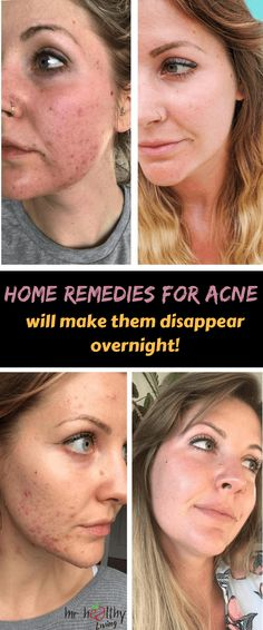 Home Remedies for Acne will make them disappear overnight! These Home Remedies for Acne will make them disappear overnight!These Home Remedies for Acne will make them disappear overnight! Home Remedies For Acne, Overnight Acne Remedies Diy, Natural Remedies For Acne, Skin Care Home Remedies, How To Get Rid Of Acne, How To Treat Acne, Acne Prone Skin, Acne Skin, Acne Scars