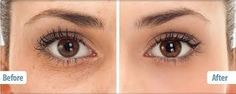 before and after eye serum