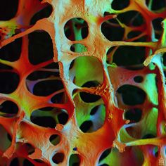 Osteoporotic Architecture in the Lumbar Vertebra. Beautiful with painful results.