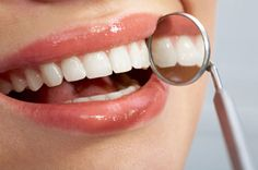 Top Oral Health Advice To Keep Your Teeth Healthy. The smile on your face is what people first notice about you, so caring for your teeth is very important. Unluckily, picking the best dental care tips migh Dental Health, Oral Health, Dental Care, Smile Dental, Gum Health, Teeth Health, Healthy Teeth, Laser Dentistry, Cosmetic Dentistry