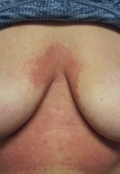 Dermatitis is a common word that refers to an inflammation of the different levels of depth of the epidermis and dermis. Holistic Clinic, Contact Dermatitis, Cupping Therapy, Holistic Medicine, Homeopathy, Acupuncture, Philadelphia, Sepia Homeopathy, Holistic Healing