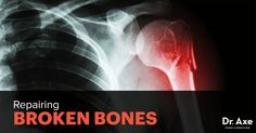 Bone related injuries can be caused due to accidents or falls. So, one can try these natural tips on how to repair broken bones in a fast manner.