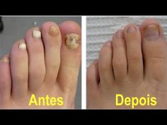 Watch This Video Mind Blowing Home Remedies for Toenail Fungus that Really Work Ideas. Astonishing Home Remedies for Toenail Fungus that Really Work Ideas. Fingernail Fungus Treatment, Toe Fungus, Toenail Fungus Remedies, Toenail Fungus Treatment, Fungus Toenails, Fungi, Home Remedies, Style