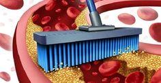 I 10 migliori alimenti per pulire vene e arterie