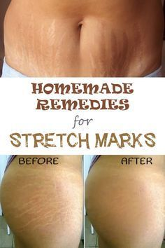 Remove and get rid of Stretch marks 5 Effective Home Remedies for Stretch Marks - #BestCreamForStretchMarks, #BestStretchMarkCream, #BestStretchMarkRemovalCream, #CreamForStretchMarks, #GetRidOfStretchMarks, #HowDoYouGetRidOfStretchMarks, #HowToRemoveStre
